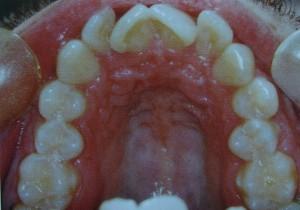 stłoczenie zębów w górnym łuku